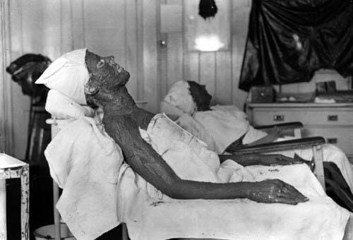 1922 Kemolite Treatment